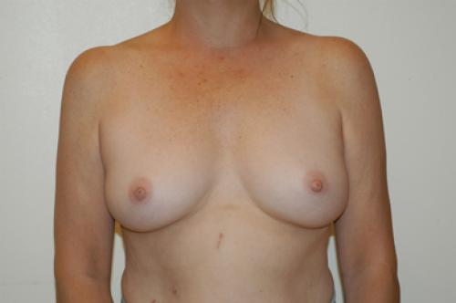 New York NY Surgeon Doctors - Breast Biopsy