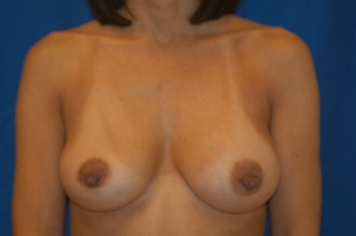 Breast i implant love new york