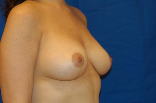 Elizabeth hilden nude picture