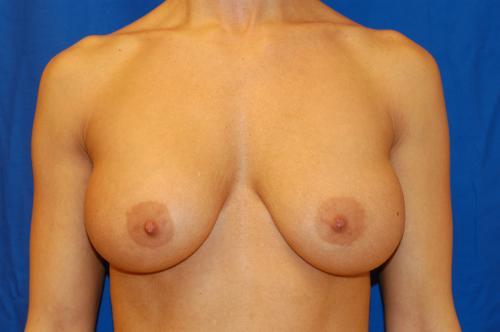 Breast enlargement island long