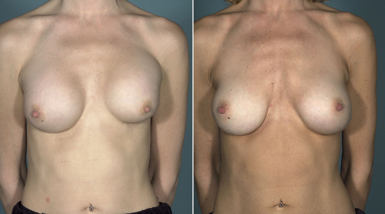 capsular contracture revision surgery new york