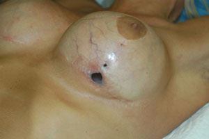 picture of exposed breast implant from nyc plastic surgeon Tracy Pfeifer