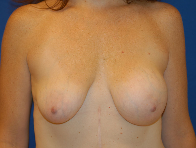 saline breast implant deflation new york